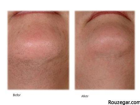 Effective chin hair-rouzegar.com