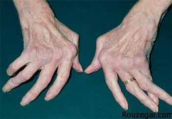 علائم اولیه خشکی مفاصل