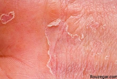 Trading with eczema or dermatitis skin