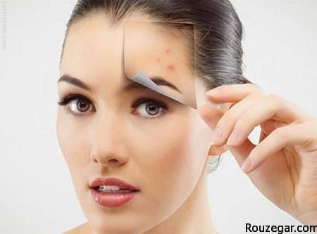 eliminate-acne