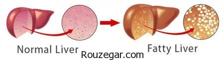 درمان سریع کبد چرب با چند میوه,درمان سریع کبد چرب,کبد چرب,کبد