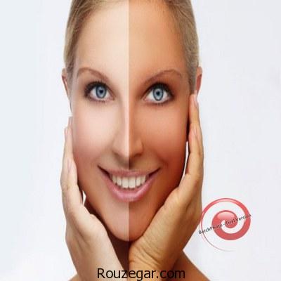 روش های روشن تر کردن پوست