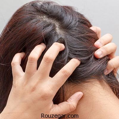 درمان خارش موی سر