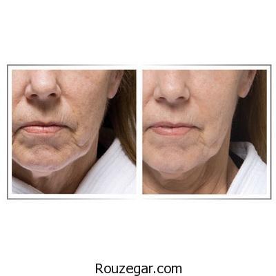 راه درمان برای سفت شدن پوست صورت و گردن