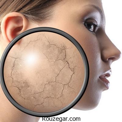راه های مقابله با خشکی پوست
