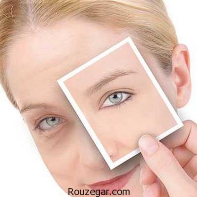 عامل پیری پوست چیست؟