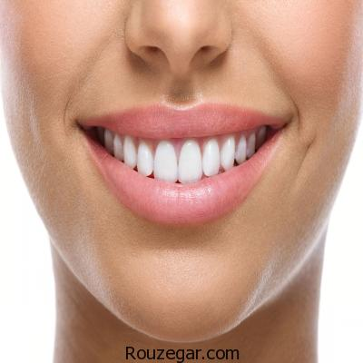 داشتن لبخند زیبا با انجام روش ها و ترفندهای کاربردی!