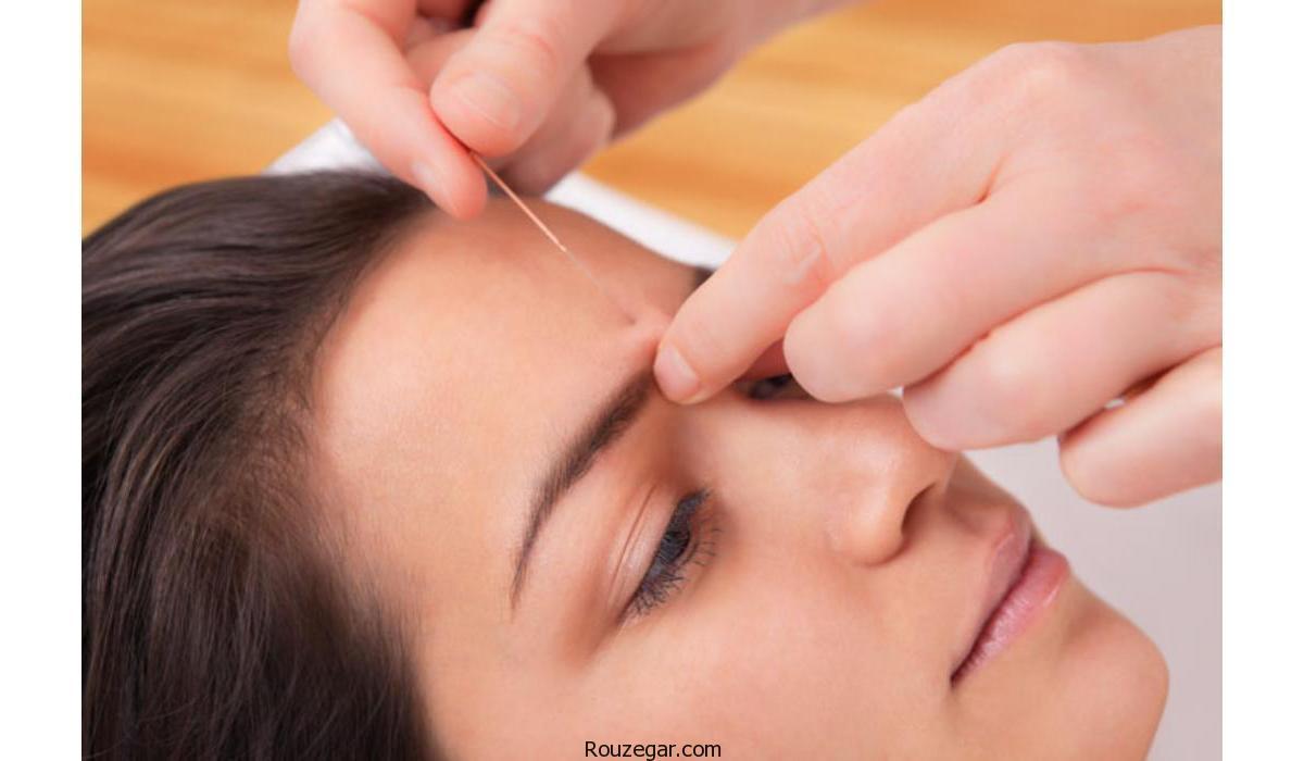 کاربرد طب سوزنی در زیبایی پوست صورت
