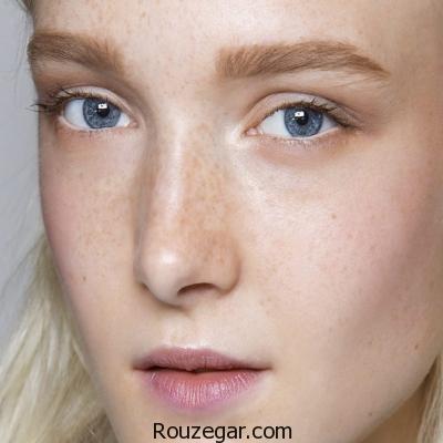 نشانه های کمبود ویتامین در چهره