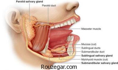 درمان آبسه پاروتید،علل بیماریآبسه پاروتید،بیماریپاروتید چیست