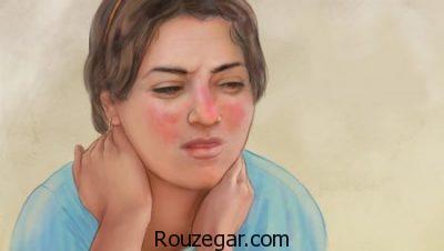 انواع بیماری لوپوس،علت ابتلا به بیماری لوپوس،بیماری لوپوس و بارداری