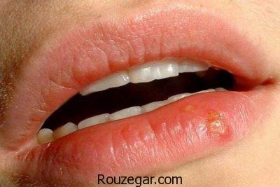 علت تبخال لب،درمان سریع تبخال لب،درمان خانگی تبخال لب