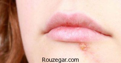 تبخال صورت،تبخال روی پوست،درمان تبخال با سیر