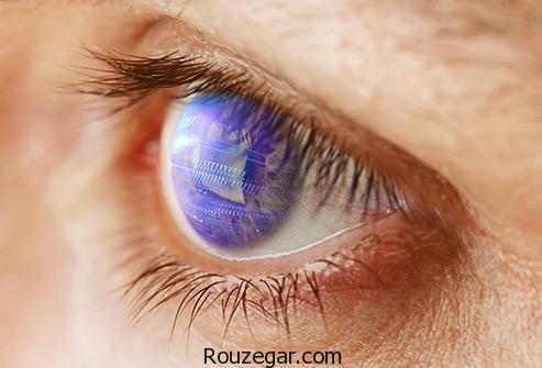 فشار چشم,علت فشار چشم راست,علت فشار چشم چیست,فشار چشم نرمال چند است,چگونه فشار چشم را پایین بیاوریم,علت افزایش فشار چشم,درمان فشار چشم,فشار چشم باید چند باشه