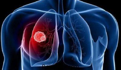 داروی آبسه ریه،درمان سریع آبسه ریه،درباره آبسه ریه