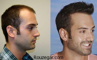 طول درمان کاشت مو،عوارض کاشت مو،جدیدترین روش کاشت مو