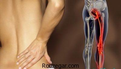 درمان عصب سیاتیک,درمان خانگی سیاتیک,درمان گیاهی سیاتیک,سیاتیک کمر,درمان سنتی سیاتیک,درمان درد سیاتیک کمر,درمان عصب سیاتیک,سیاتیک,سیاتیک پای راست,سیاتیک چیست,درمان سیاتیک با حجامت