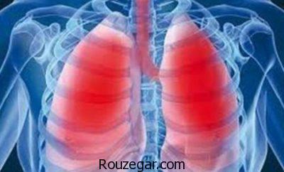 درمان قطعی ذات الریه،درمان طب سنتی ذات الریه،داروی گیاهی برای ذات الریه
