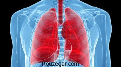رژیم غذایی آمبولی ریه،عوارض آمبولی ریه،داروی گیاهی برای آمبولی ریه