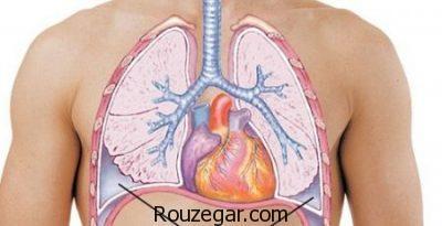 علل بیماری آمپیم،عوارضبیماری آمپیم،درمان بیماری آمپیم