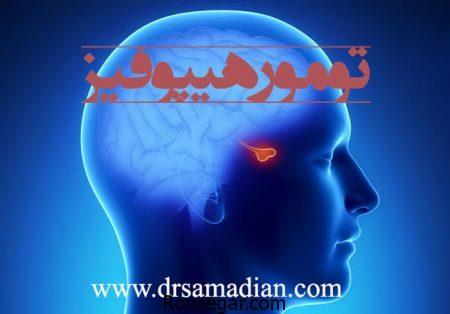 جراحی تومور هیپوفیز و تومور مغزی
