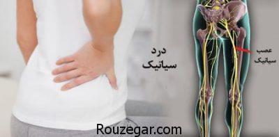 درد سیاتیک پای راست,مسکن قوی برای درد سیاتیک,درمان خانگی درد سیاتیک