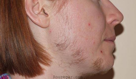 درمان های خانگی موهای زائد