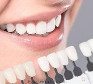 کاشت دندانی