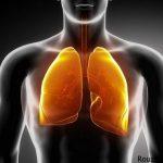 علت سرطان ریه + انواع سرطان ریه