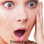 چرا جوش میزنیم و راه درمان جوش چرکی صورت و بدن