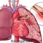 آمبولی ریه در زنان باردار + علائم و درمان بیماری آمبولی ریه