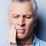بهترین روش درمان دندان درد خانگی و مهمترین علت درد دندان شدید