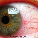 علت التهاب عنبیه + درمان التهاب عنبیه چشم