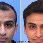 کاشت مو بدون جراحی + جدیدترین روش کاشت مو در ایران