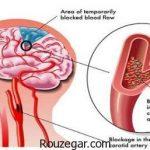 سکته مغزی خفیف + علائم سکته مغزی در زنان